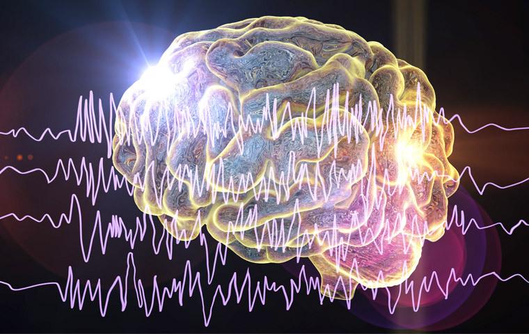 epilepsia-refractaria