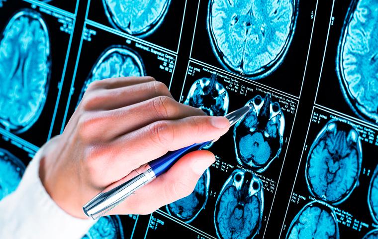 tipos-epilepsia-blog